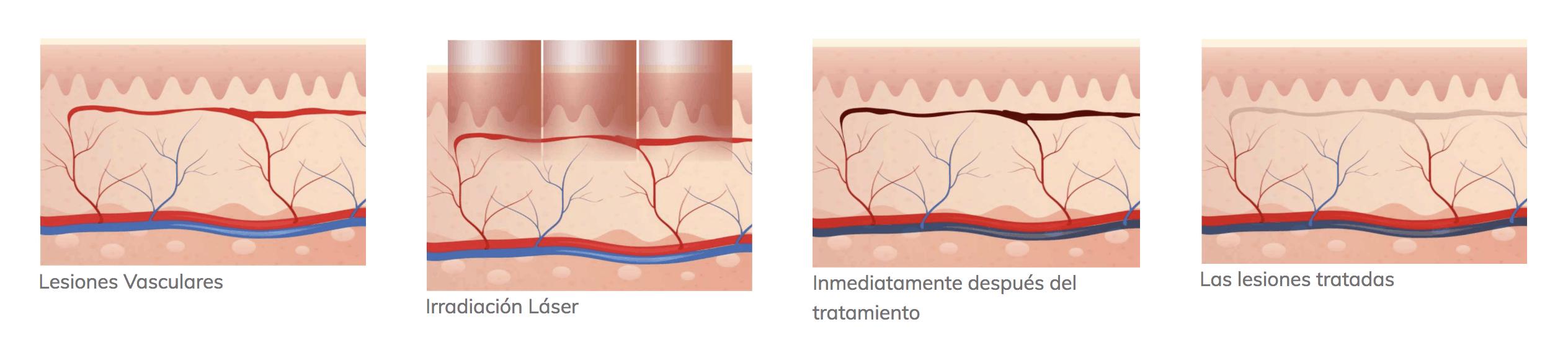 v-laser lesiones vasculares, pigmentarias y rejuvenecimiento. Belium Medical distribuidor oficial españa