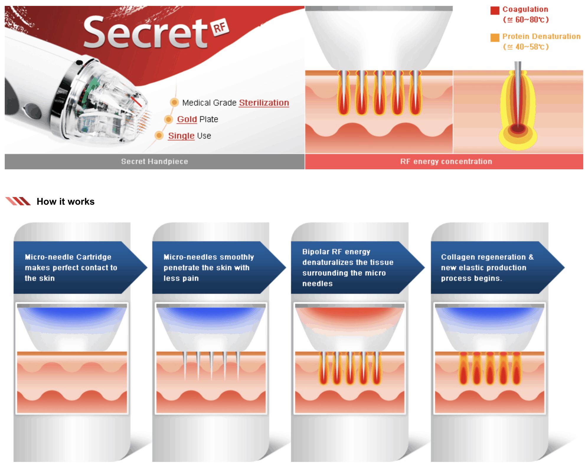 secret radiofrecuencia fraccionada microagujas punta de oro de belium medical FDA para acne, cicatrices, rejuvenecimiento, colágeno