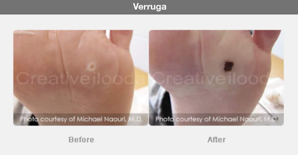 antes y después fraxis, laser, co2, radiofrecuencia, fraccional, micro-aguja, cicatrices, belium, medical, aparatología