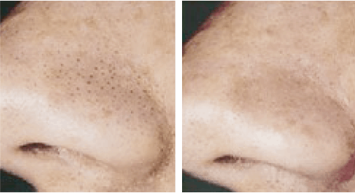 profacial antes y después Aqua Peeling, Ion Lifting, radiofrecuencia y Ultrasonidos. belium medical distribuidor españa. Limpieza facial profunda, rejuvenecimiento, antiarrugas, producción de colágeno