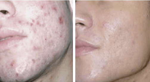 profacial antes y después acne Aqua Peeling, Ion Lifting, radiofrecuencia y Ultrasonidos. belium medical distribuidor españa. Limpieza facial profunda, rejuvenecimiento, antiarrugas, producción de colágeno