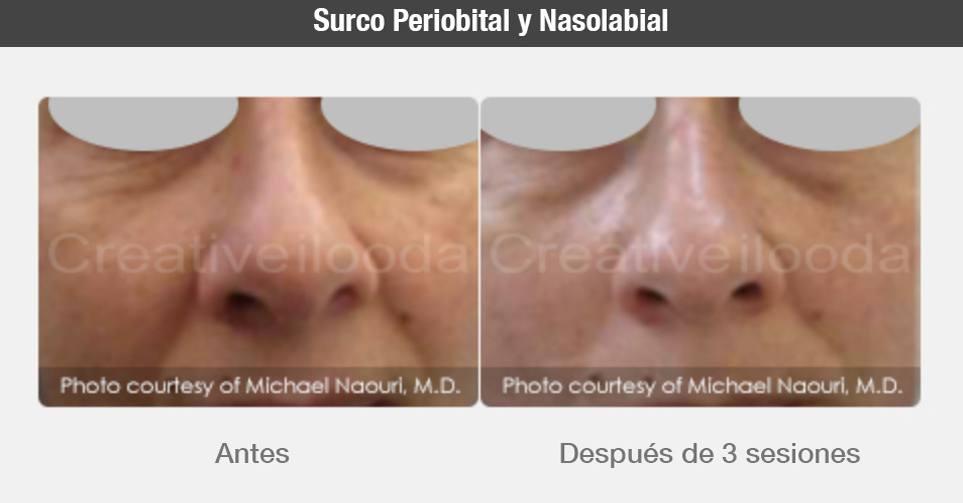 antes y despues fraxis duo belium medical radiofrecuencia laser co2 microagujas cicatrices, acne, rejuvenecimiento, FDA médico