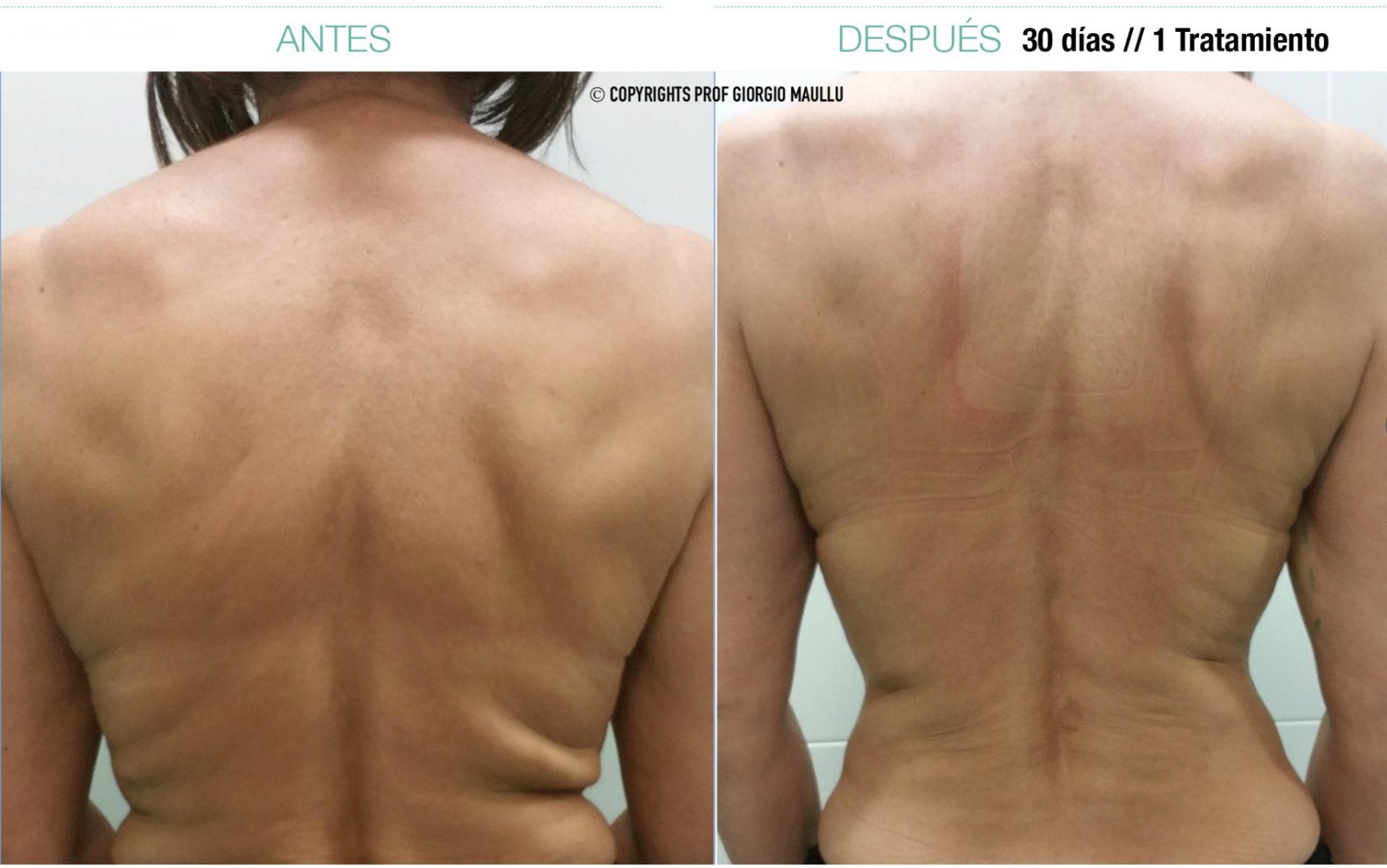 attivarf antes y despues espalda radiofrecuencia endodérmica combate el envejecimiento, flacidez, grasa, celulitis. Belium Medical distribuidor oficial españa