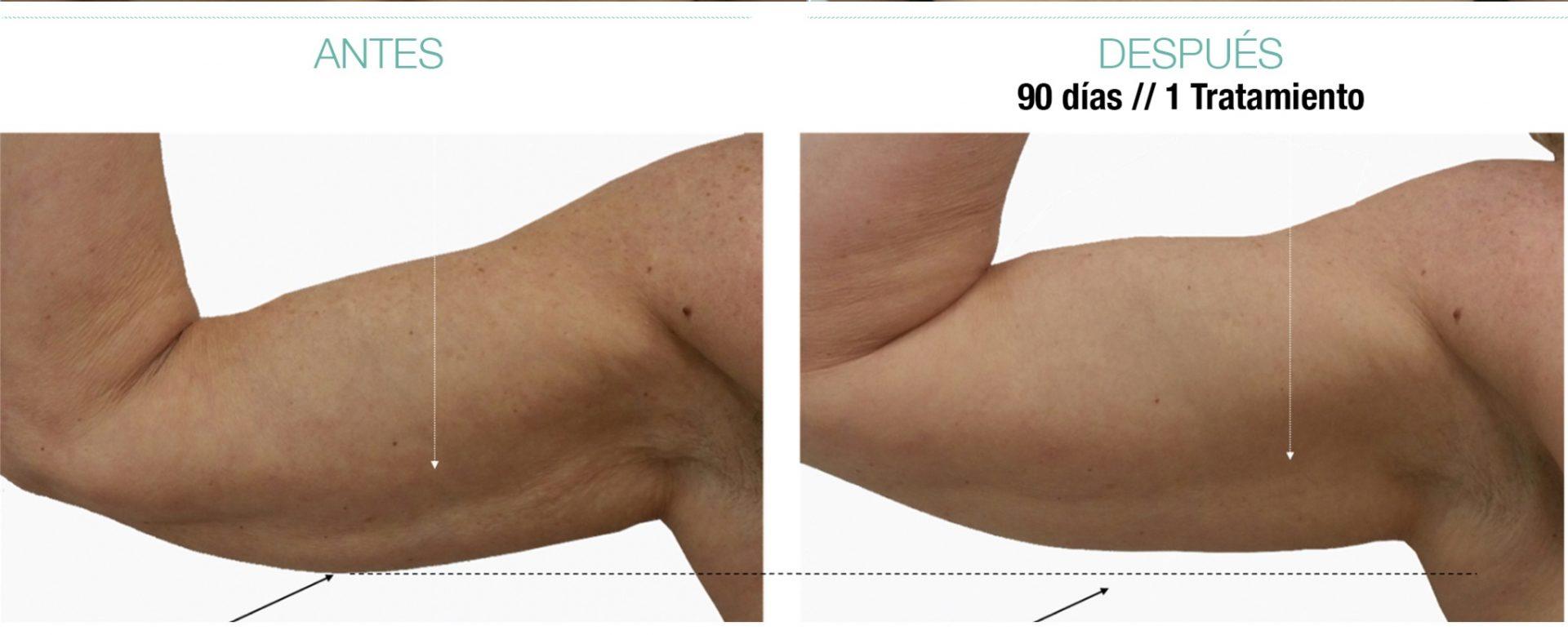 attivarf antes y despues brazo radiofrecuencia endodérmica combate el envejecimiento, flacidez, grasa, celulitis. Belium Medical distribuidor oficial españa