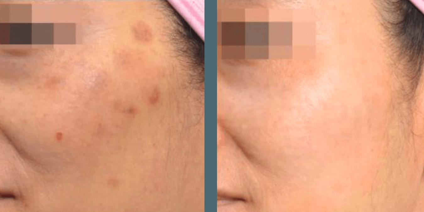 antes y después picocare FDA laser picosegundo para eliminación de tatuajes y lesiones pigmentadas. Belium medical distribuidor oficial españa