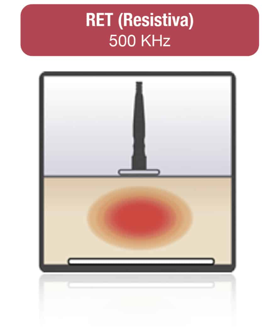 rafos premium ret resistiva radiofrecuencia capacitiva, resistiva y tripolar. Belium Medical