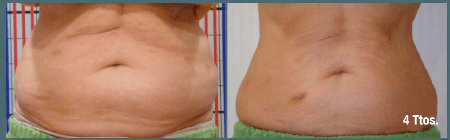 robolex trynea: antes y despues abdomen radiofrecuencia, cavitación, vacum, laser para eliminacion celulitis, grasa, flacidez. Tratamiento facial rejuvenecimiento y corporal. Belium Medical distribuidor españa