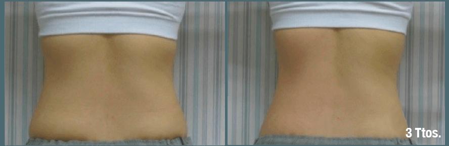robolex trynea: antes y despues radiofrecuencia, cavitación, vacum, laser para eliminacion celulitis, grasa, flacidez. Tratamiento facial rejuvenecimiento y corporal. Belium Medical distribuidor españa