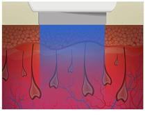 velux laser dioso y alejandrita para depilacion potente, distribuidor oficial belium medical