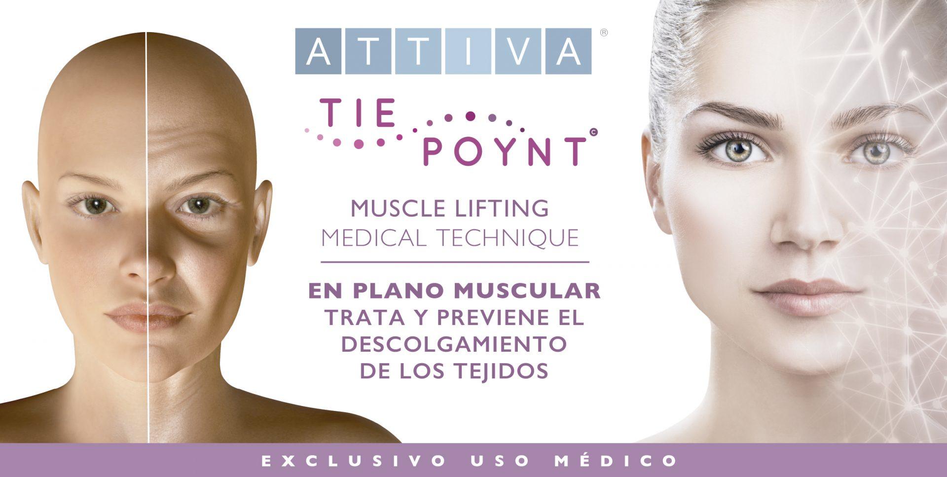 Lifting Médico Regenerador Cervico Facial TIE POYNT ©