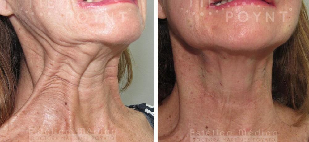 antes y despues tie poynt, lifting muscular attiva, flacidez cuello, belium ativarf