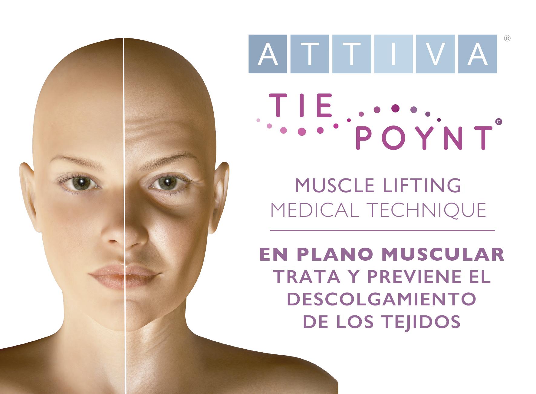 tie poynt, lifting muscular attiva, flacidez cuello, belium ativarf