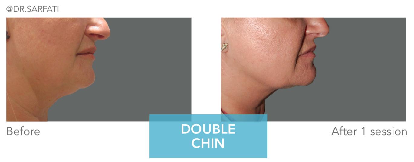 antes y después cristal pro criolipolisis remodelacion corporal 360º