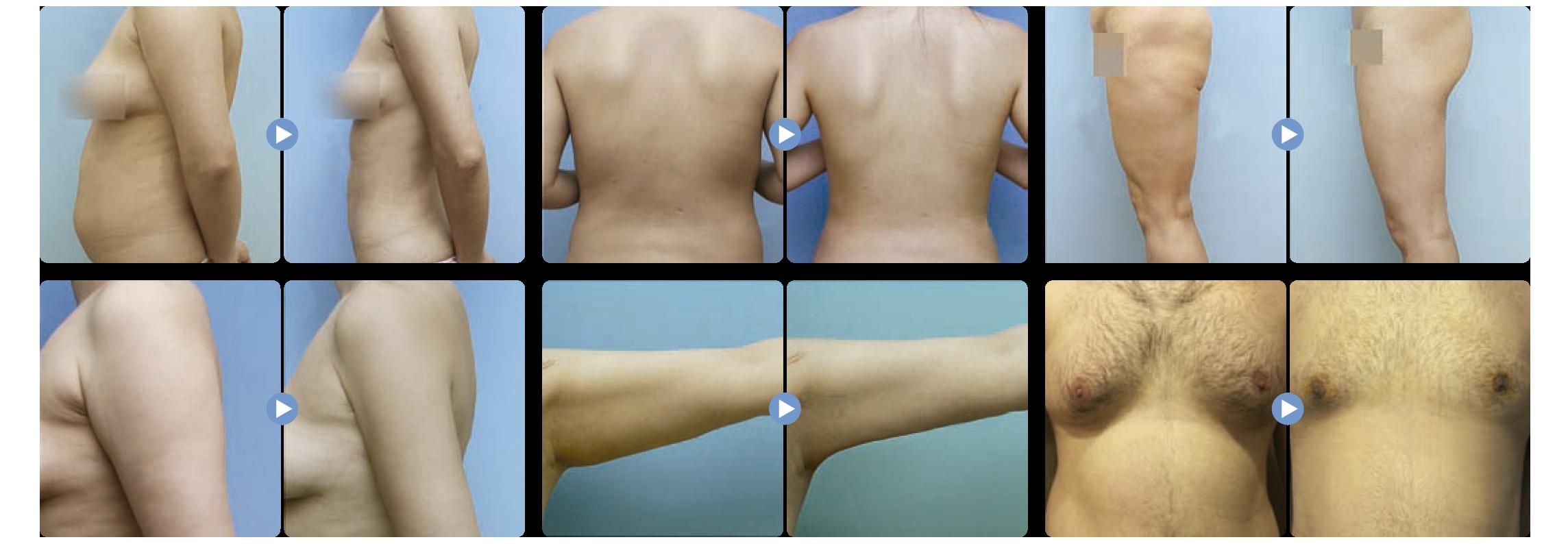 Liposound corporal antes y despues es una liposucción asistida por ultrasonido en el que hay menos riesgo de daño a los nervios, para medicina estetica