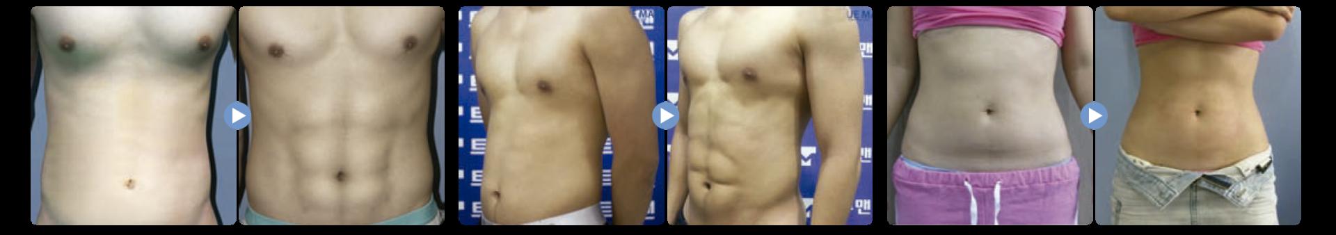 Liposound definicion antes y despues es una liposucción asistida por ultrasonido en el que hay menos riesgo de daño a los nervios, para medicina estetica
