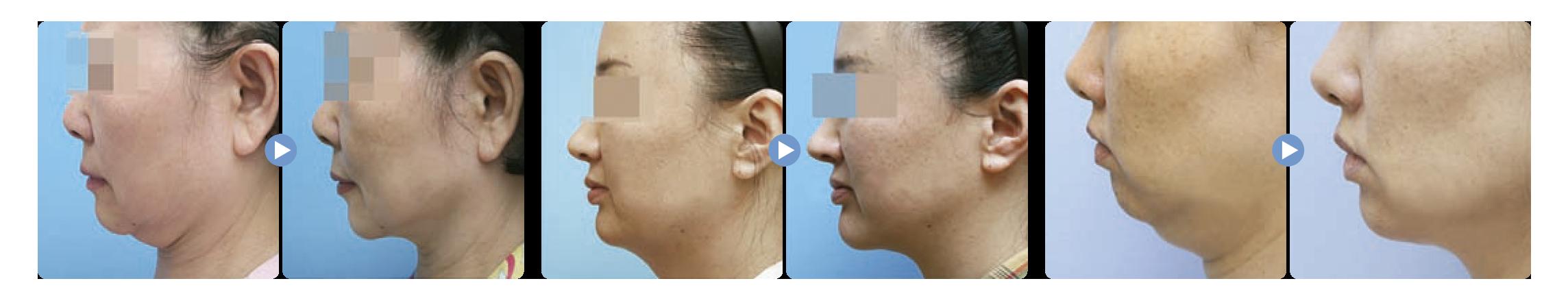 Liposound facial antes y despues es una liposucción asistida por ultrasonido en el que hay menos riesgo de daño a los nervios, para medicina estetica