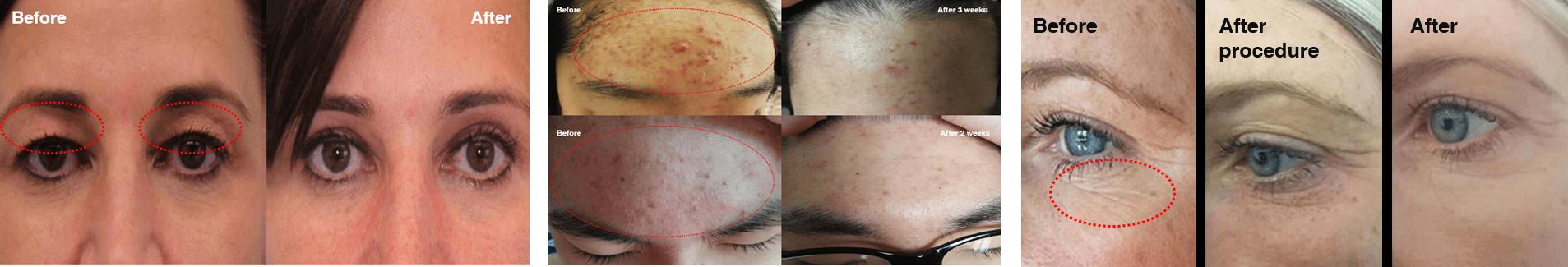 ANTES Y DESPUES plasma bt parpados acne cicatrices
