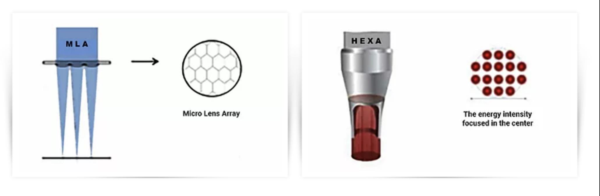 picocare FDA laser picosegundo para eliminación de tatuajes y lesiones pigmentadas. Belium medical distribuidor oficial españa